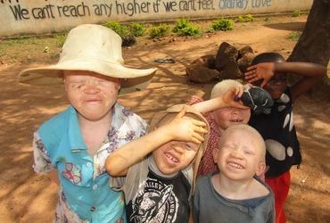 Albinokinderen in Tanzania hebben uw hulp nodig
